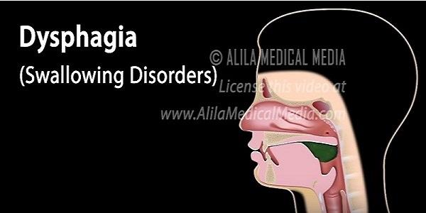 dysphagia-image